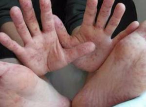 Управление здравоохранения развеяли панику среди таганрожцев о бушующем в городе вирусе