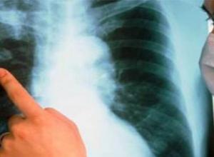 В Таганроге у троих украинцев обнаружили туберкулез