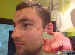 В Ростове неизвестные жестоко избили участника Олимпийских игр по гребле