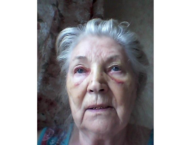 Таганроженка пролетела через салон и сломала нос в ростовской маршрутке