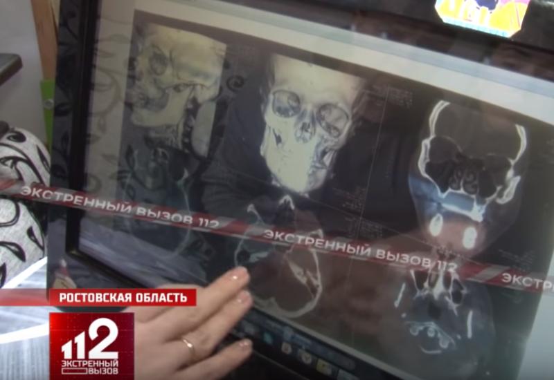 «Рудик ни в чём не виноват» - уже 2 года полиция Таганрога не задерживает подозреваемого в жестоком избиении
