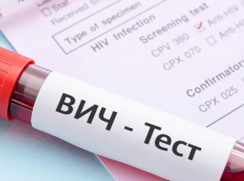 ВИЧ-инфекция добралась до таганрогских пенсионеров